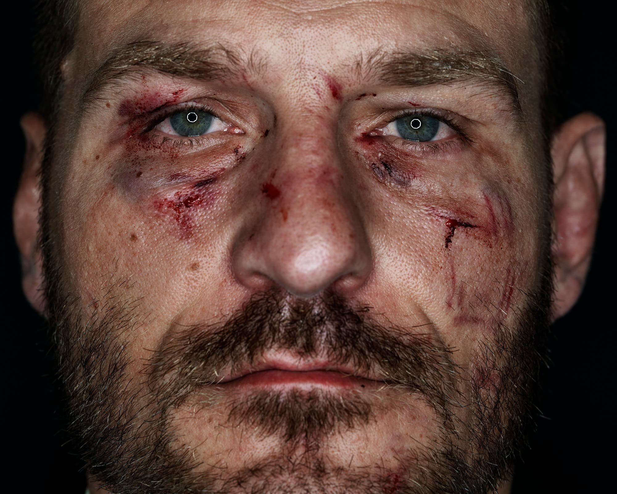 Kevin Lynch Portrays The Humanity Behind Fierce UFC Fighters