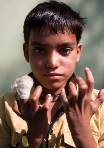 Ed Hanley: Documenting Leprosy in India