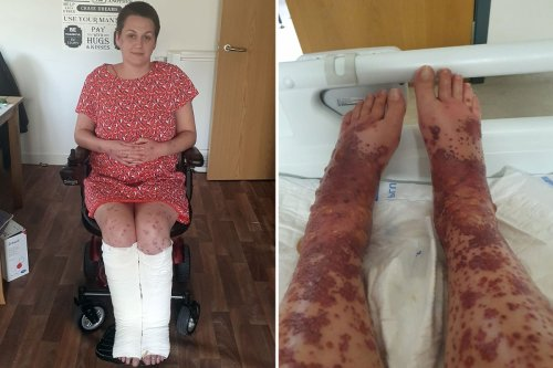 Mum's legs erupted in blisters after Covid vaccine but urges others to get jab