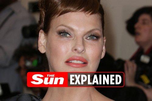 What cosmetic procedure did Linda Evangelista have?
