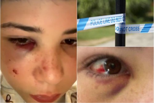 Police appeal for witnesses after Sheffield schoolboy is attacked in broad daylight