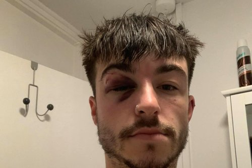 Clubgoer claims he was 'knocked unconscious' while being kicked out of Sheffield's Leadmill nightclub