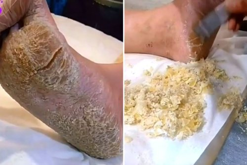Stomach-churning moment beautician tackles MOUNTAIN of dry skin on client's feet