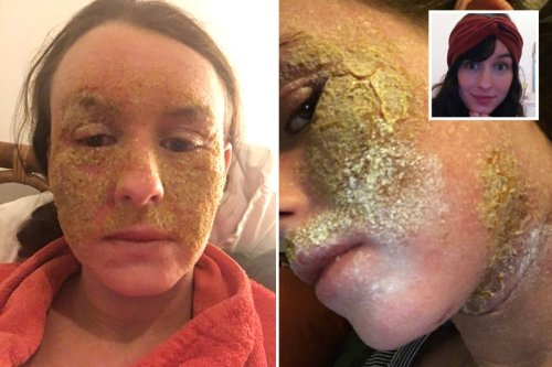 I was terrified when my face erupted in agonising yellow scabs