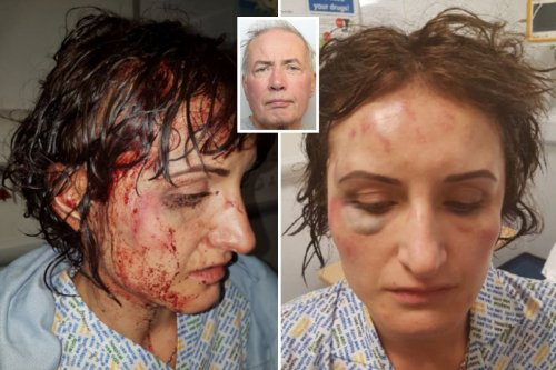 Defiant woman releases injury pics after violent ex attacked her with hammer
