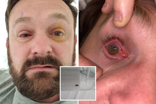 Garage owner instantly blinded after piece of metal flew into his eye