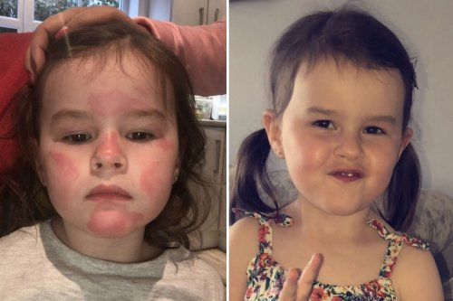 I dabbed lotion on my daughter, 3, and moments later she was covered in rashes