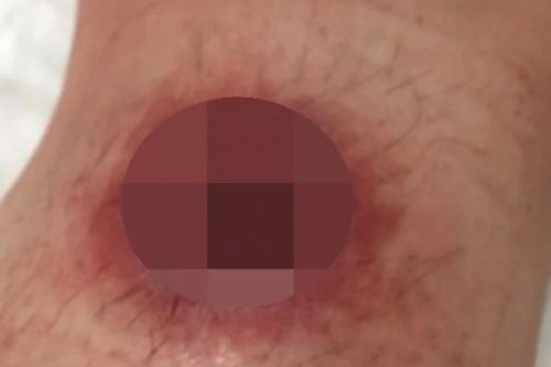 Flesh-eating disease in Australia leaves victims with oozing ulcers