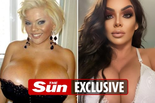 I spent £320k to look like Dolly Parton and will soon have world's biggest boobs