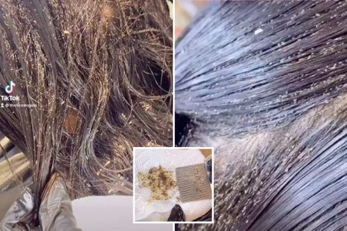 Little girl suffered head lice for THREE YEARS horrifying new video reveals - with millions of the bugs coming out with each comb