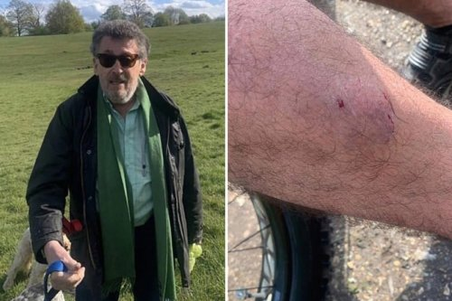 Cyclist claims Holby City actor's dog 'bit him' in post on 'mystery' man