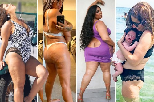 Ashley, Malin and Stacey LOVE theirs — but a third of us HATE our cellulite