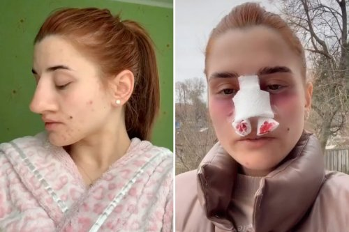 Woman shares before & after results of nose job - and people can't believe it