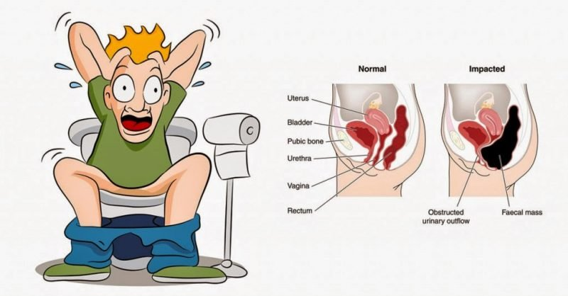 Can I Use Prunes and Potassium to Treat My Constipation?
