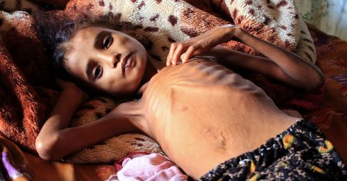 Yemen Faces the Worst Famine the World Has Seen in Decades, the U.N. Warns