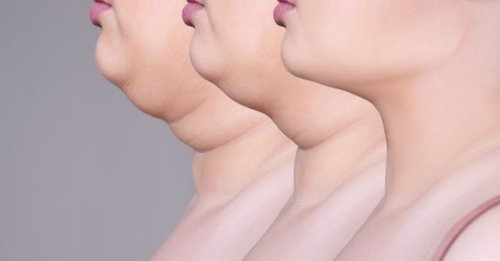 Is a double chin bothering you? Effective exercises to get rid of that extra fat