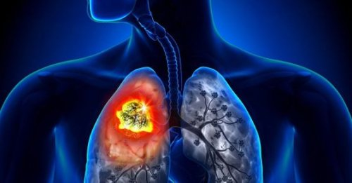 World Lung Cancer Day 2021: Enhance your lung health through these effective exercises