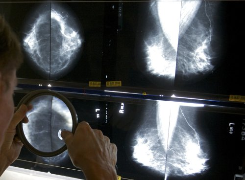 AstraZeneca announces 'groundbreaking' results in new breast cancer drug trial