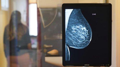 Fast jede zweite Frau lässt Einladung zur Mammografie verfallen