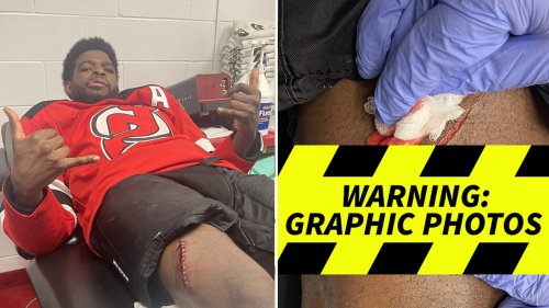 NHL's P.K. Subban Suffers Bloody Wound After Skate Slash ... Thigh Ripped Open!!!