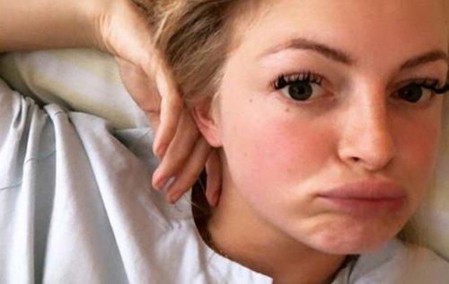 """BTN-Star Josephine Welsch: """"Ich brauch Hilfe"""""""