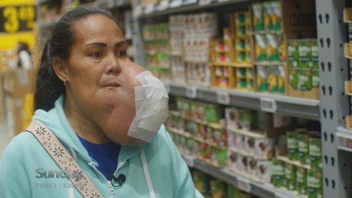 Kiwi surgeon hoping to save brave woman with facial tumour