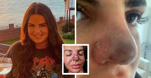 Woman Issues Warning After Nose Filler Starts Rotting