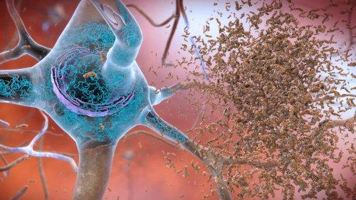 Despite Mixed Evidence, FDA Approves New Alzheimer's Drug