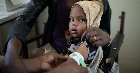 UN Report: 350,000 Ethiopians Are Living in Famine Conditions
