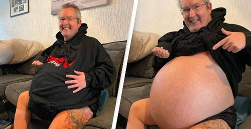 Man With 40kg Kidneys To Undergo Surgery