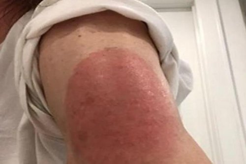 Dermatologists say most COVID-19 vaccine rashes aren't worrisome