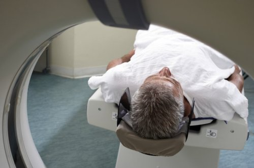 Prostate cancer screening using MRI may reduce overdiagnosis, study finds
