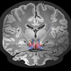 Australian-first clinical trial shows brain stimulation can treat severe OCD