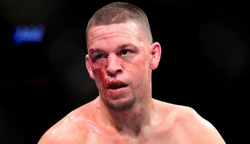 Nate Diaz injured, fight with Leon Edwards moved to UFC 263 in June