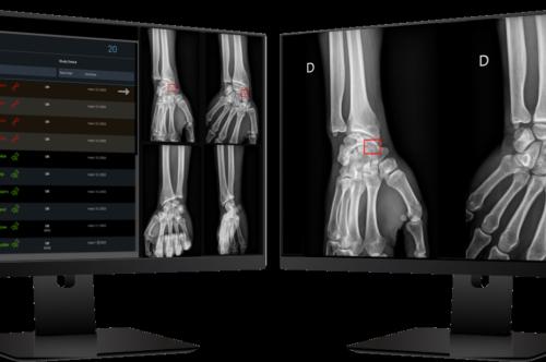 GE Healthcare choisit le logiciel de détection automatique des fractures d'AZmed