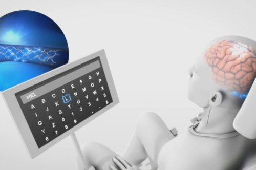 La pépite Synchron reçoit le feu vert de la FDA pour tester sa neuroprothèse sur les humains