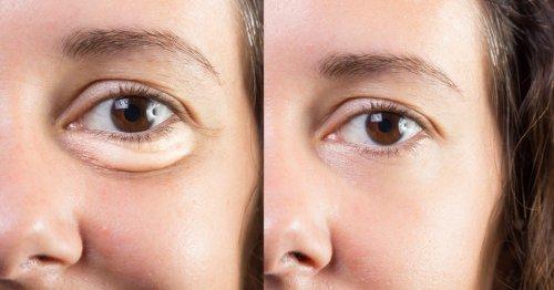 This Moisturizing Eye Cream May Dramatically Reduce Puffiness