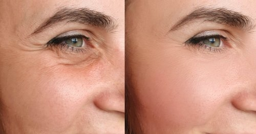 Shoppers Can't Stop Sharing Amazing Results Pics of This Anti-Aging Serum