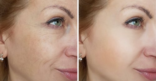 New Launch: This At-Home Facial May Give You Smoother, Brighter Skin After 1 Use