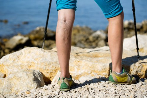 These Tips Will Help Treat and Prevent Varicose Veins