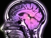 Stroke Prevented His Speech, But Brain Implant Brought It Back | Health News | US News