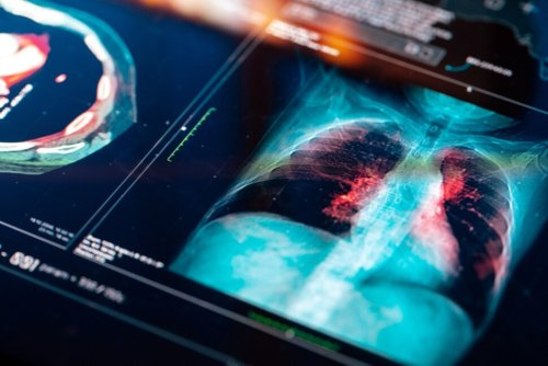 More People Die From Lung Cancer Than Breast, Colon and Prostate Cancers Combined