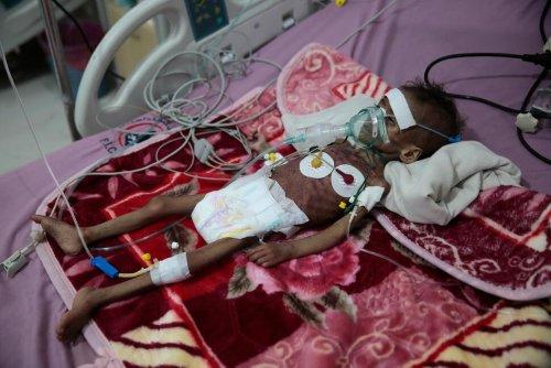 UN Warns COVID-19 Is `Roaring Back' as Yemen Faces Famine