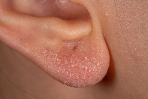 What You Need to Know About Eczema in and on Your Ears