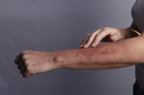 Everything You Need to Know About a Mono Rash