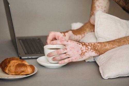 Causes and Risk Factors of Vitiligo