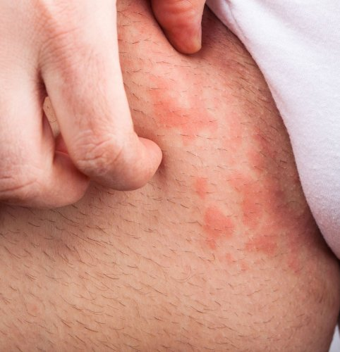 Can You Get Heat Rash On Your Groin?