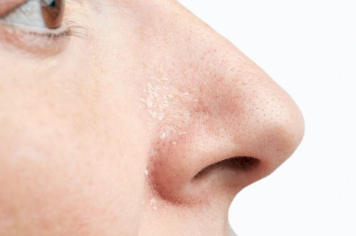 How to Treat Psoriasis in or Around Your Nose