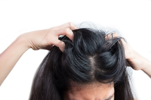 What Is a Scalp Yeast Infection?