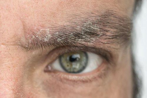 What Is Eyebrow Dandruff?